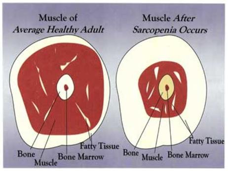 sarcopenia-muscle.jpg